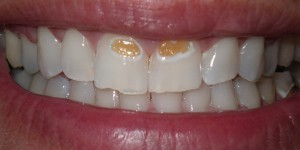 close up picture of a patient's teeth before their treatment
