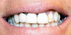 picture of a patient's teeth