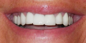 close up picture of a patient's smile after their makeover