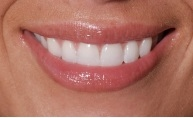 close up picture of a woman's smile