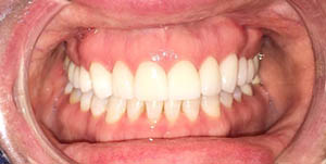 picture of a patient's smile after their treatment