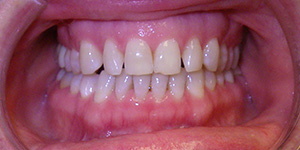 picture of a patient's mouth before their makeover