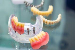prosthetic teeth with mini dental implants